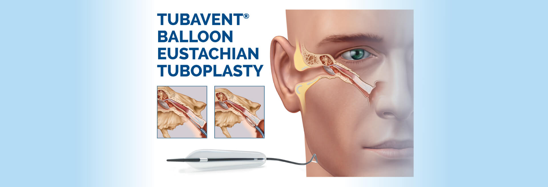 Tubavent Ballon Eustachian Tuboplasty